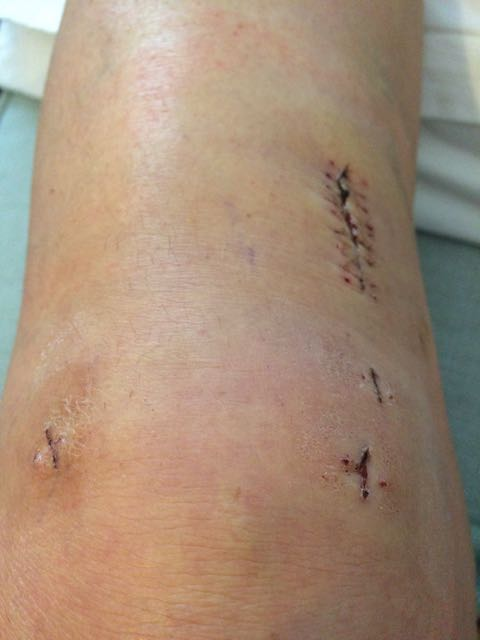 acl repair surgery post staples