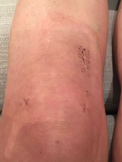 acl repair surgery week 3
