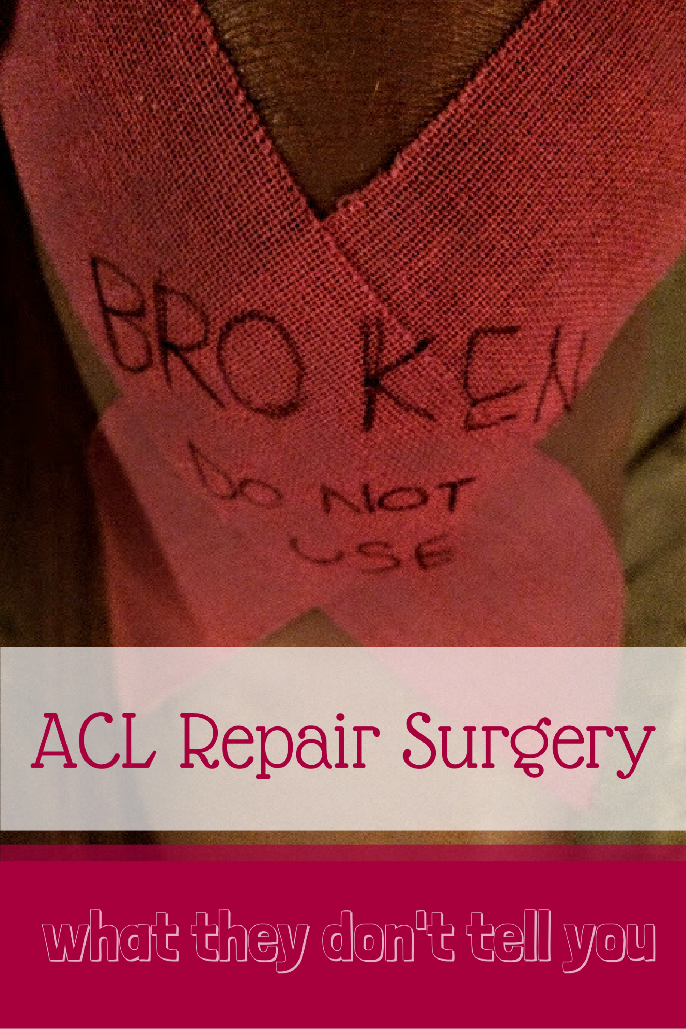 on sale 8efff 76e7a So, that s been my ACL repair surgery experience. Have you have an ACL  repair  Did you have a different experience  Let me know in the comments  below.