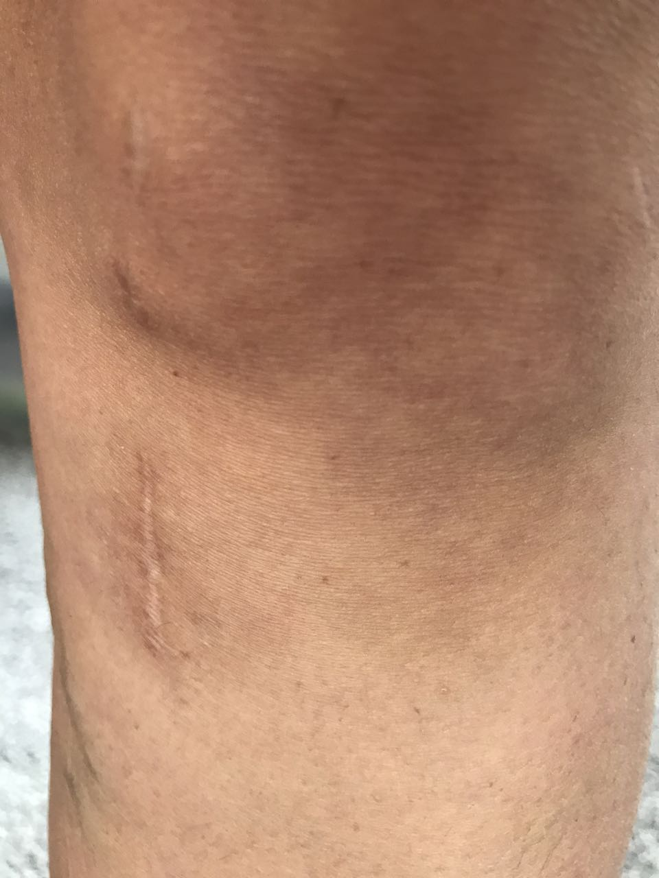 42168ee4f06 ACL Repair Surgery - What They Don't Tell You (and My Recovery ...