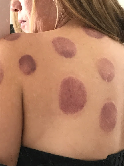 phone health text neck cupping